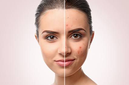 Dermo Ablation Surgery